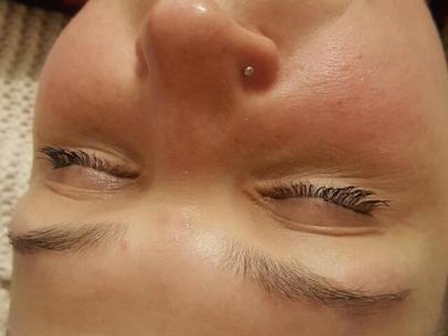 Чистка лица - 1