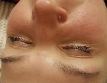 Чистка лица - Изображение 1