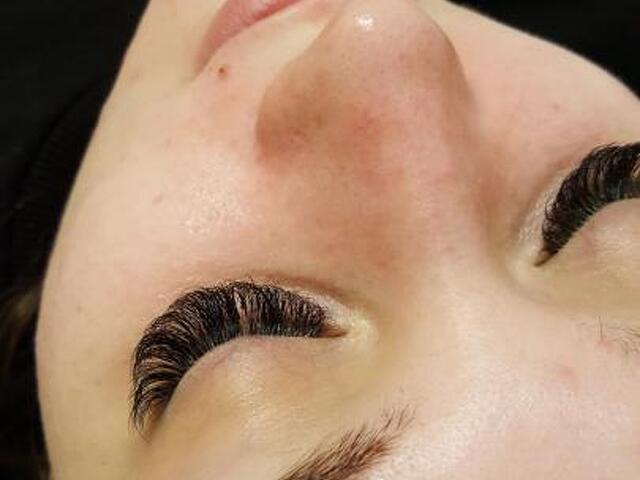 Чистка лица - 3